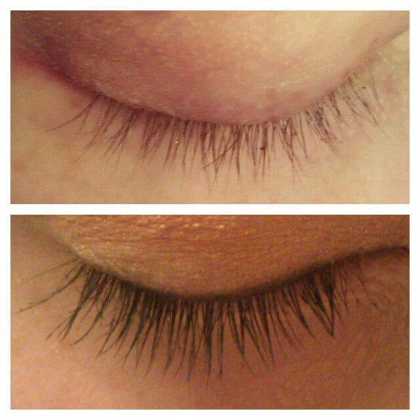 before and after fysiko eyelash growth serum